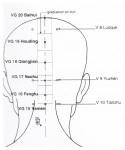 VG15-20